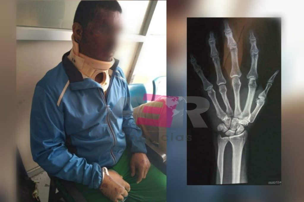 Niegan atención médica en el IMSS a motociclista accidentado; grave. 7