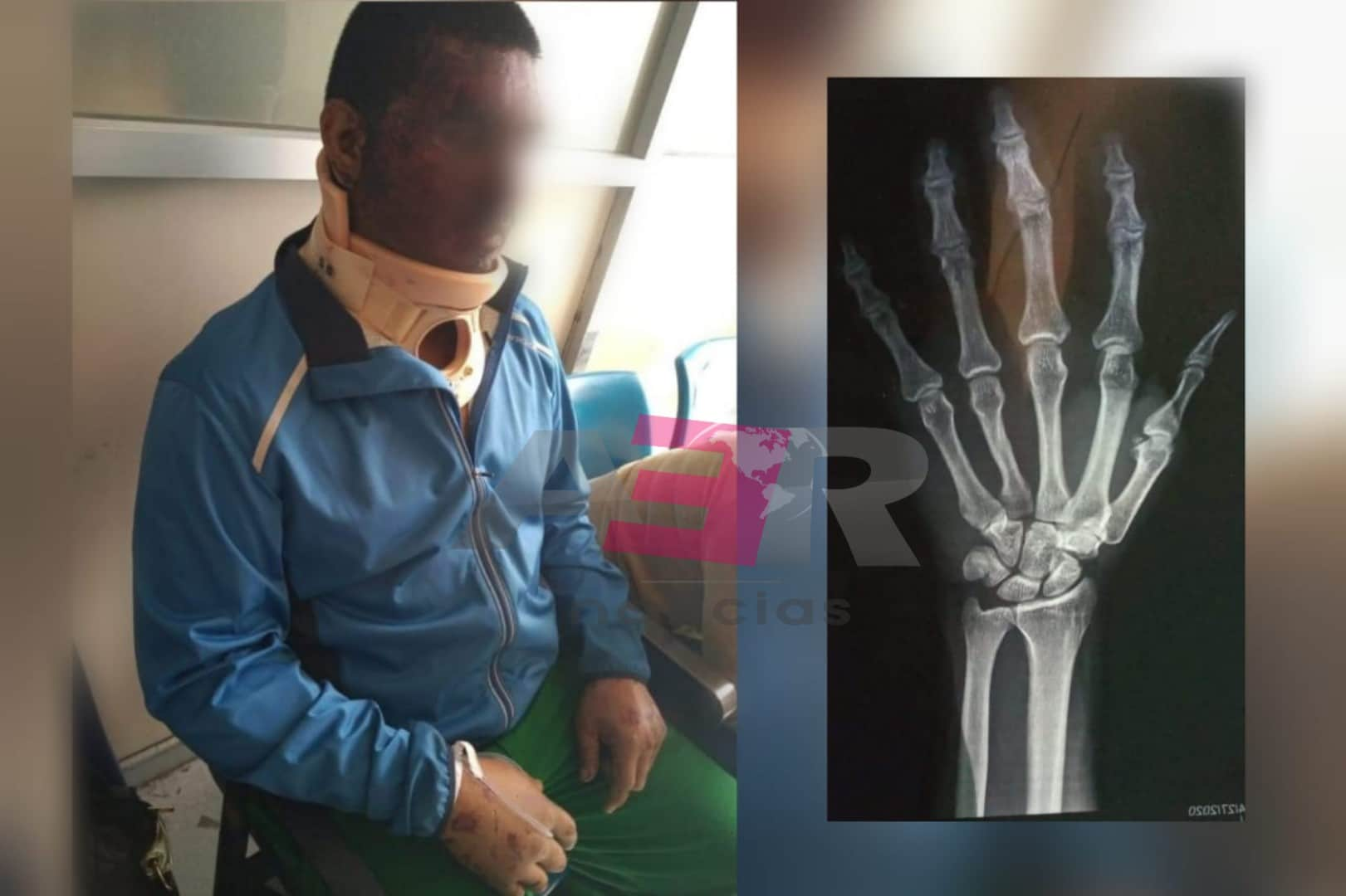 Niegan atención médica en el IMSS a motociclista accidentado; grave. 3